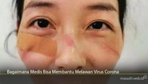 Bagaimana Medis Bisa Membantu Melawan Virus Corona