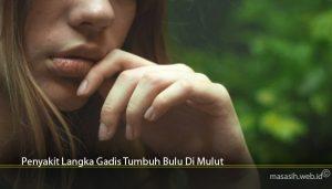 Penyakit Langka Gadis Tumbuh Bulu Di Mulut